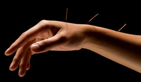acupuncture gorey wexford