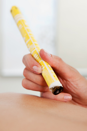 moxibustion ireland treatment